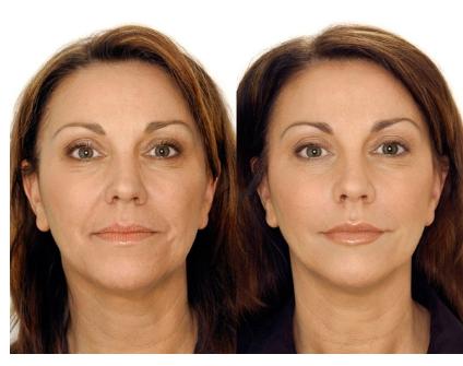 biorevitalizatsiia-lica-before-after