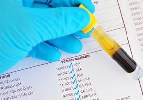 Анализ на онкомаркеры