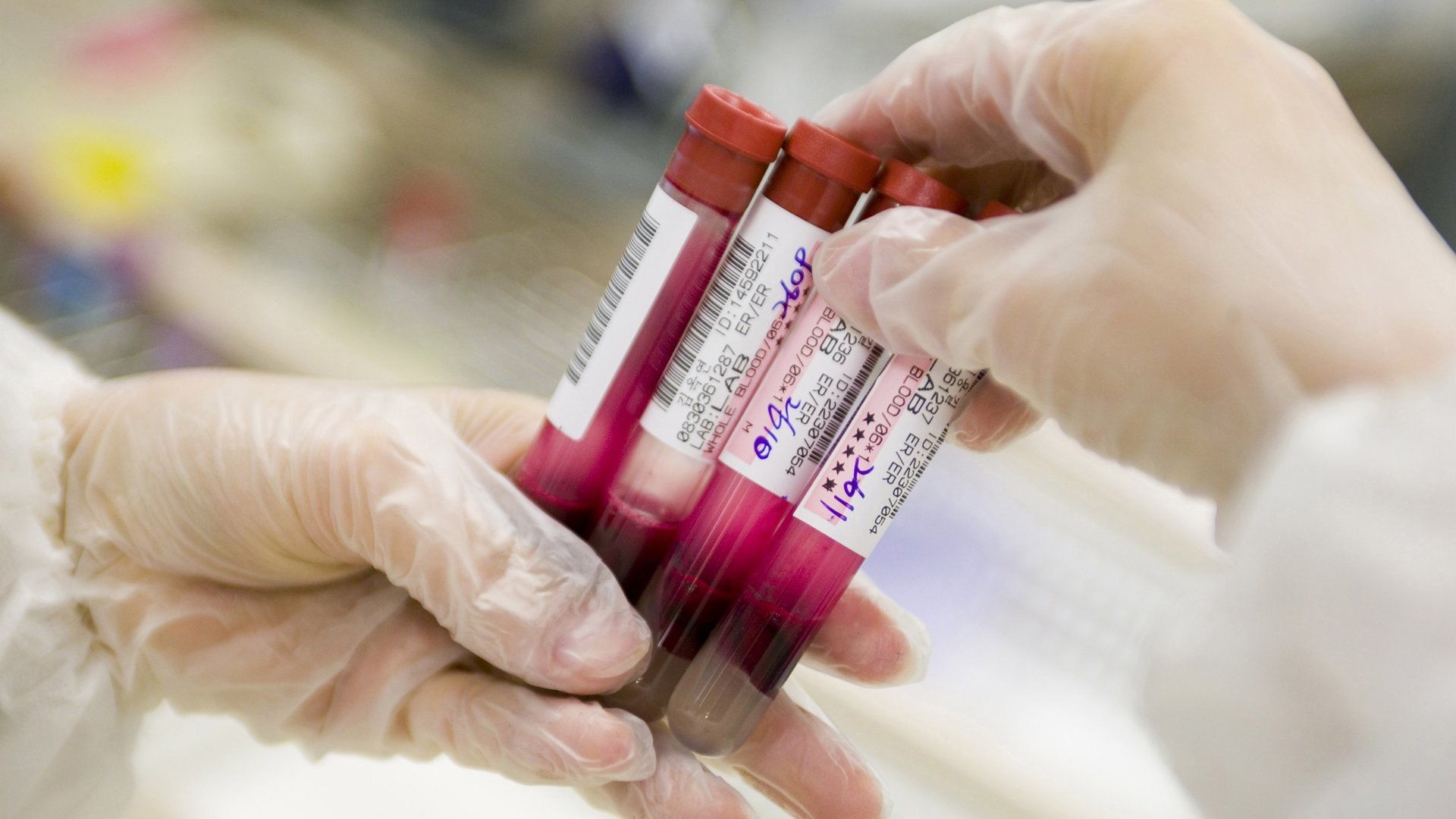 Close-up of blood samples, investigated to determine blood type A, B, O, the Rhesus-D-factor and, upon indication, the possible presence of potentially harmful antibodies to the patient blood type.