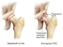 Артроз тазобедренного сустава: степени, симптомы и лечение