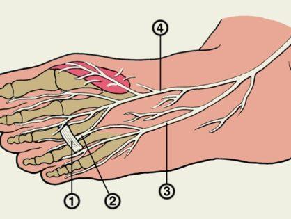Тунельные синдромы верхних и нижних конечностей