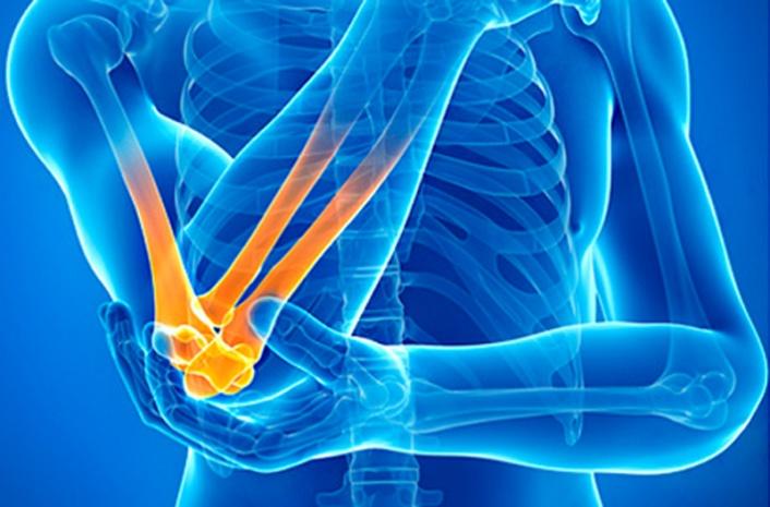 Последствия травм суставов
