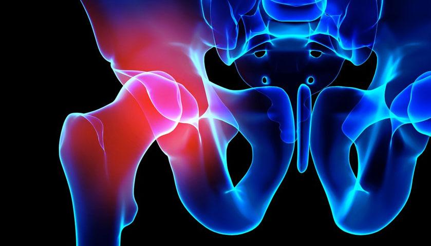 Боль в тазобедренном суставе. Некроз головки бедренной кости