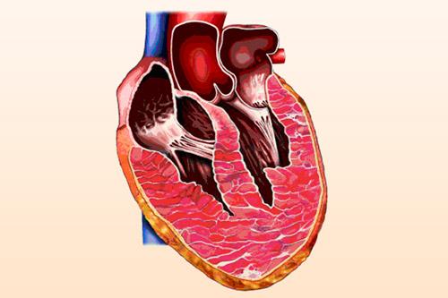 гипертрофия сердца вправо и влево