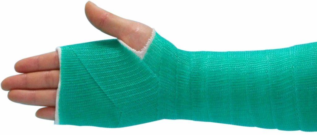 Лангетка на руку – альтернатива гипсу при переломах - ВашеЛечение