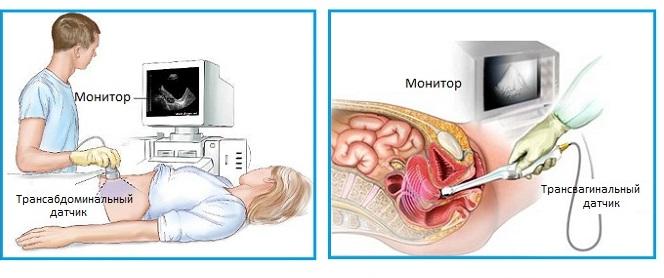 Врач проводит процедуру трансабдоминального и трансвагинального исследования