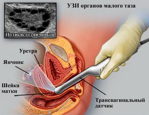 Трансванинальное исследование органов малого таза у женщин, на картинке области исследования