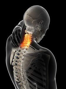 Паралич при переломе шейного отдела позвоночника