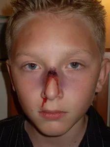 Перелом носа у ребенка: симптомы и лечение