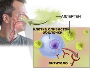 аллергия и синусопатия