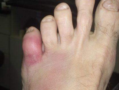 Ушиб мизинца на ноге
