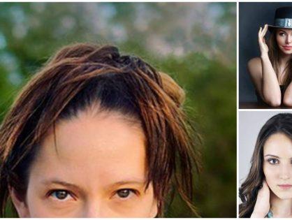 Волосы быстро жирнеют (засаливаются): причины, что делать в домашних условиях