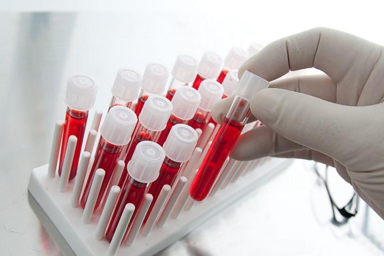 Анализ крови может указать на воспалительную причину слабости в коленях (фото: www.vnews.agency)