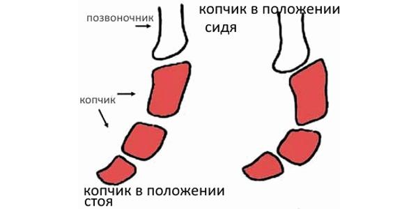 Первичная кокцигодиния связана непосредственно с повреждением самого копчика