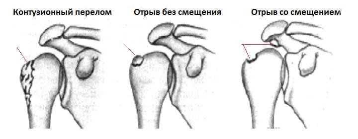 Реабилитация после перелом большого бугорка плечевой кости