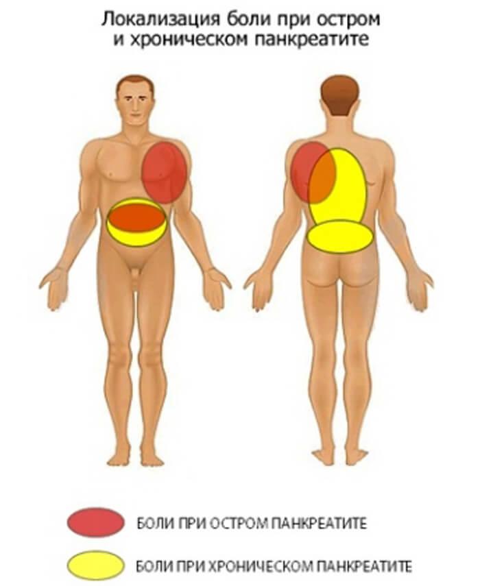 pankreatit-podzheludochnoj