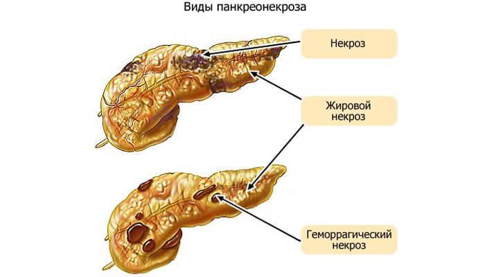 Vidy-pankreonekroza