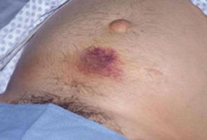 priznaki-pankreonekroza