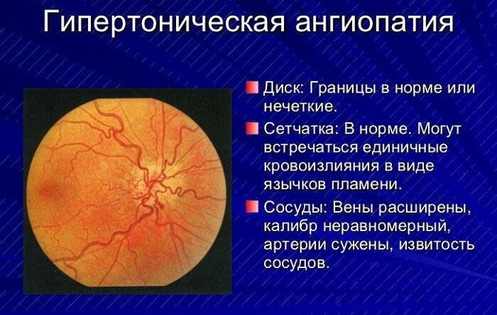 Ангиопатия: поражение сетчатки обоих глаз, как лечить ...
