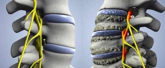 Защемление нервов у позвоночника
