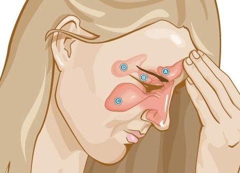 Стандартная локализация воспаленных пазух носа