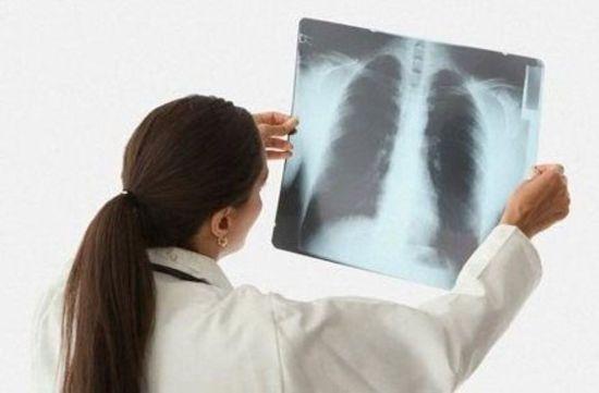 Оценка рентген-снимка грудной клетки