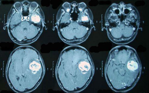 МРТ с контрастом головного мозга
