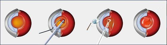 этапы факоэмульсификации катаракты. замена хрусталика