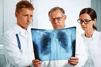 Как вылечить кашель при раке легких