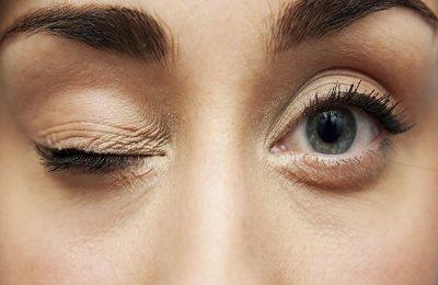 Дёргается нижнее веко глаза: причины и лечение