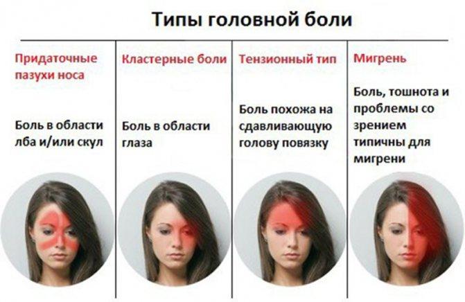 Головные боли в области лба и глаз | Центр патологии позвоночника