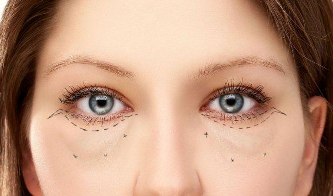 Синие отеки под глазами