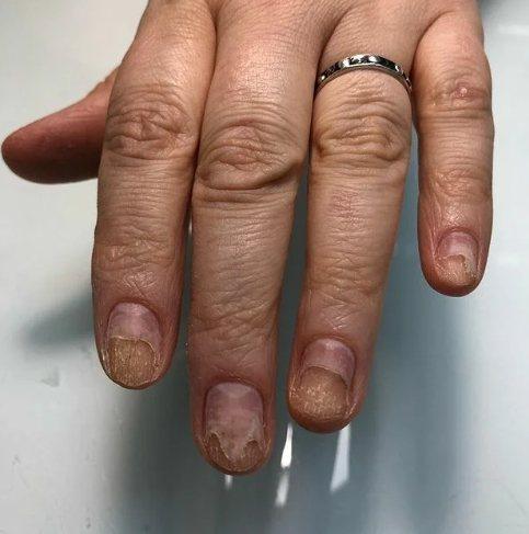 ожог ногтевой пластины