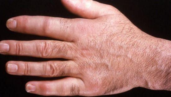 Опухшие пальцы рук