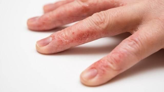 Сухая кожа на пальцах