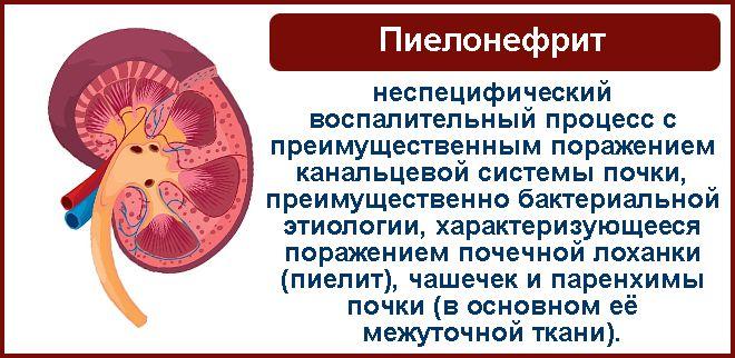 пиелонефрит может стать причиной простатита