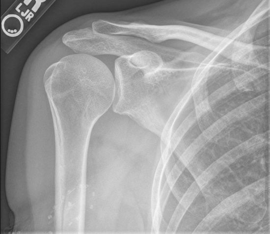Рентген-снимок плеча