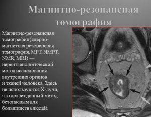 МРТ для диагностики уплотнения легкого