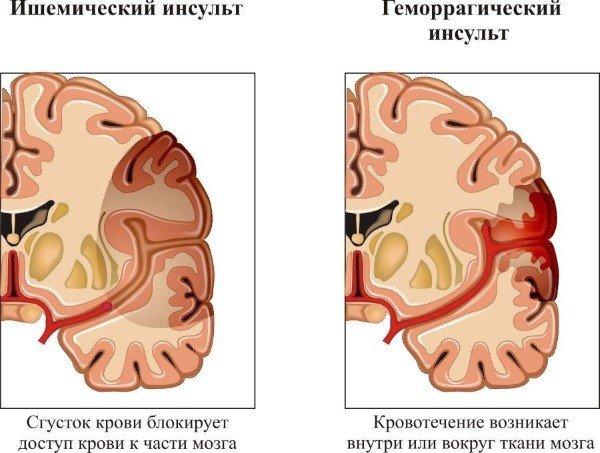 Инсульт головного мозга: симптомы, последствия, виды и лечение