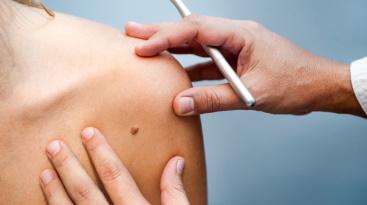 Наблюдение и удаление кожных новообразований (родинки, бородавки, папилломы)