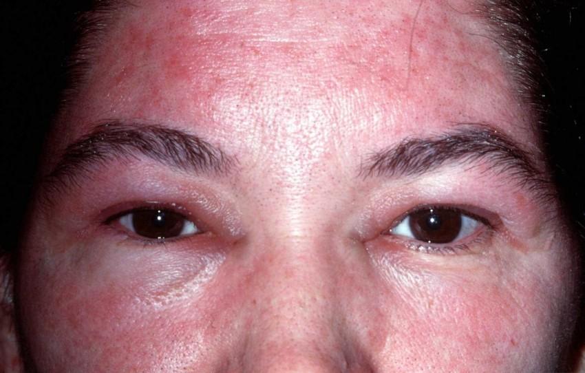 The dermatitis group includes inflammatory skin diseases