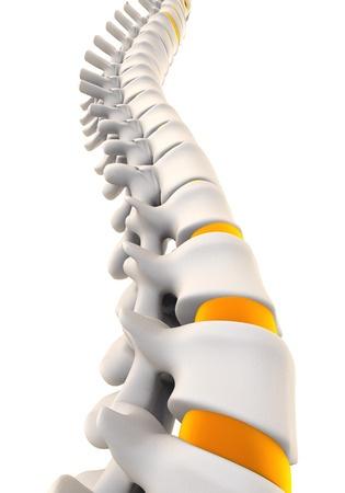 Дегенеративно-дистрофические изменения грудного отдела позвоночника