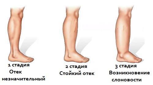 Лимфостаз ног массажер дом техники товары