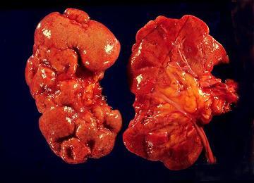 Болит под ребрами слева