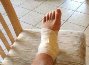 нога перевязанная, растяжение