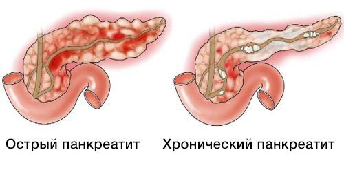 Новые зарубежные рекомендации по диагностике и лечению острого и  хронического панкреатита