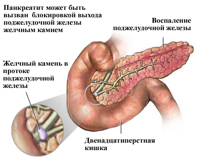 Панкреатит поджелудочной железы: острый, хронический - лечение,  профилактика заболевания продукцией Fohow (Феникс) / Формула Здоровья  Ян-Шен (formula-zdorovya.org)