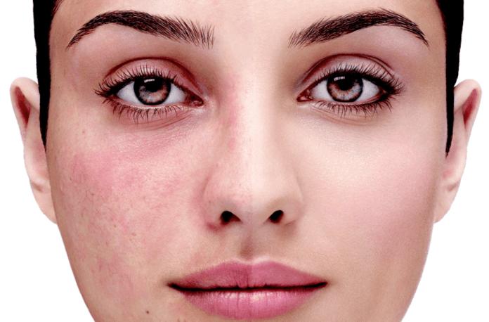 Причины раздражения кожи лица - Официальный сайт израильской косметики  Christina в Украине