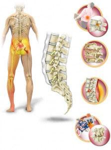 Боль в пояснице - лечение, симптомы, причины, диагностика   Центр Дикуля