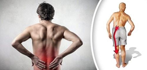 Боль в пояснице отдает в ноги - причины и лечение при сильной тянущей боли  ниже поясницы отдающей в ногу